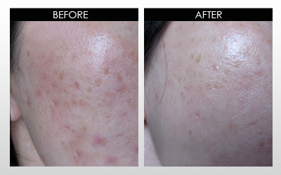 Box scars and sun-induced hyperpigmentation Before and After
