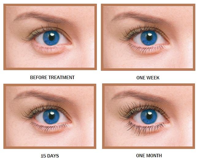 Prolash+ Eyelash Growth Enhancer 5 mL