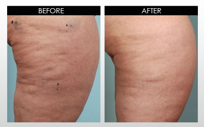 cellulite-before-and-after-2.jpg