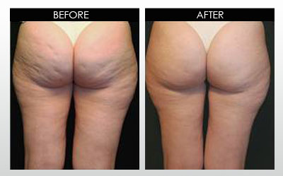 cellulite-before-and-after.jpg