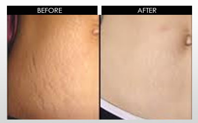 dermaresults-before-after1.jpg