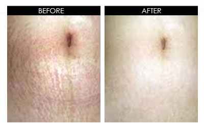 dermaresults-before-after2.jpg