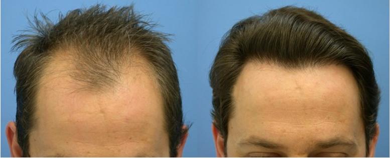 Does Dermaroller Work For Hair Loss
