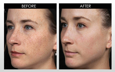 hyperpigmentation-before-and-after-2.jpg