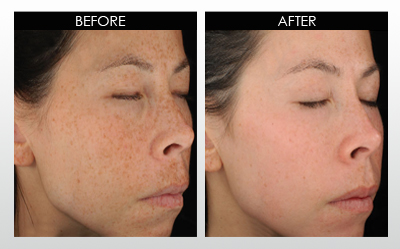 hyperpigmentation-before-and-after.jpg