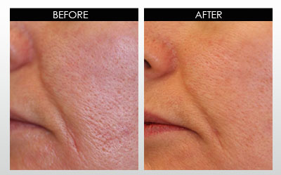 large-pores-before-and-after-2.jpg