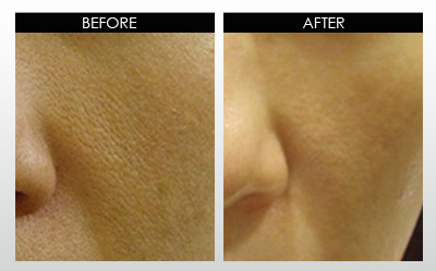 large-pores-before-and-after.jpg