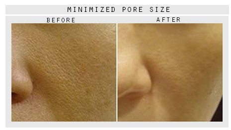 minimized-pore-size.jpg