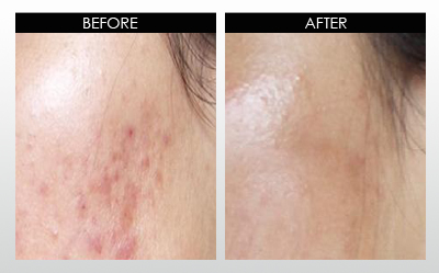Moderate case hypertrophic acne scars results