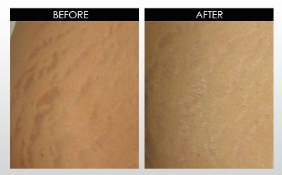 Stretchmarks: before and after