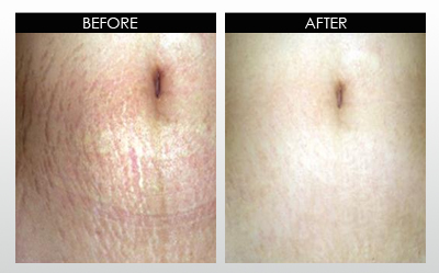 stretchmarks-before-and-after.jpg